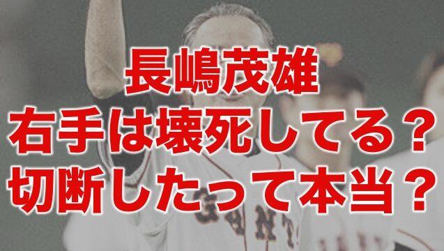 長嶋茂雄の右手は壊死してる?色が黒く切断したって本当?